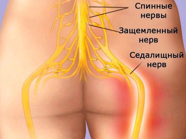 Седалищные нервы. Симптомы их защемления
