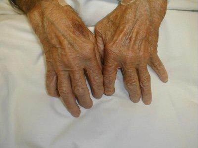 Фитотерапия при артритах.