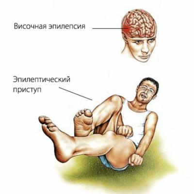 Лечебник Лоевского. Родимец или эпилепсия