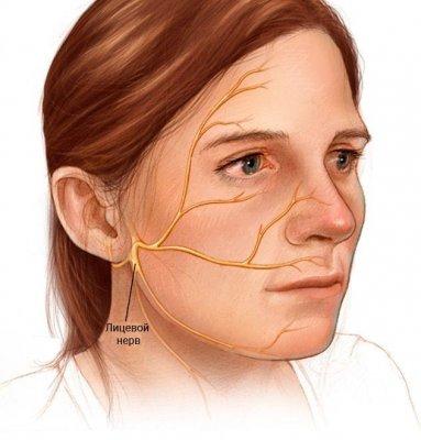 Паралич лицевого нерва Лечение (Авиценна)