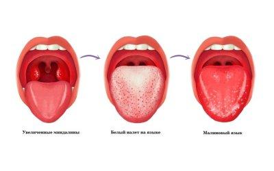 Скарлатина. Симптомы, формы, течение, распознавание, лечение